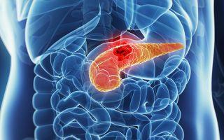 Причины развития рака поджелудочной железы и методы его лечения