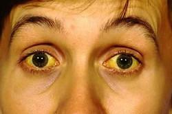 Механическая желтуха у пациента