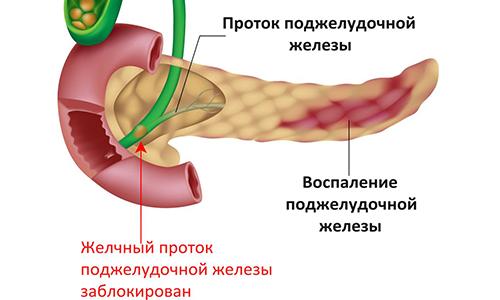 Панкреатическое воспаление в поджелудочной железе