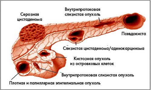 Виды кистозных образований в поджелудочной железе