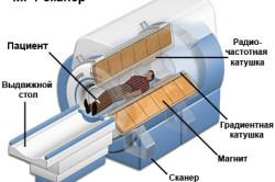 МРТ для диагностики панкреонекроза