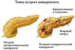 Острый панкреатит - причина увеличения поджелудочной