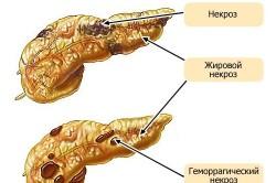 Виды панкреонекроза человека