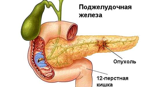 Горчица при сахарном диабете 2 типа, семена горчицы.