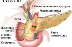3 стадия рака поджелудочной железы