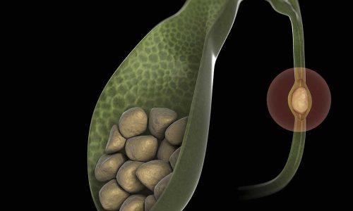 В структуре поджелудочной обнаруживаются диффузно-очаговые трансформации. Пораженный участок такого типа является признаком присутствия в теле поджелудочной камней