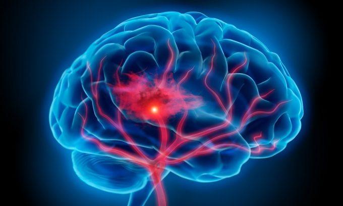 Запрещено употребление алкоголя при поражениях головного мозга