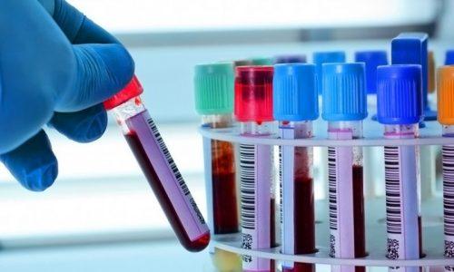 Анализы при обследовании поджелудочной железы позволяют получить информацию не только о заболевании, но и строении органа
