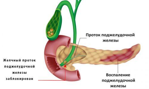 Билиарный панкреатит - воспалительный процесс, протекающий в поджелудочной железе
