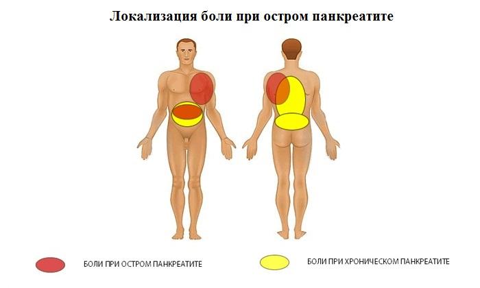 Локализация боли при остром панкреатите: эпигастральная область и левое подреберье