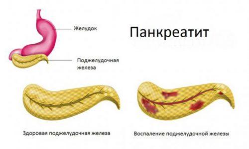 Панкреатит у детей встречается в 5-25% случаев гастроэнтерологических заболеваний