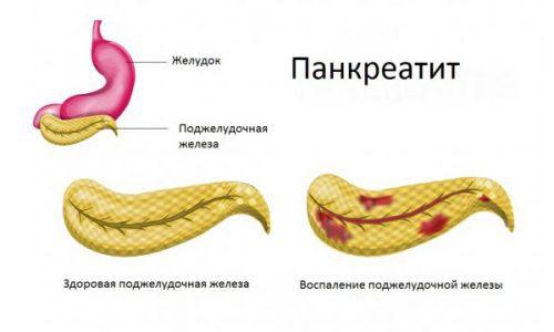 Панкреатит - это дегенеративно-воспалительный процесс, при котором поджелудочная железа начинает сама себя переваривать