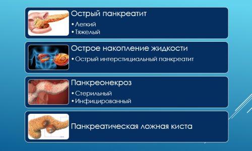 Международная классификация острого панкреатита