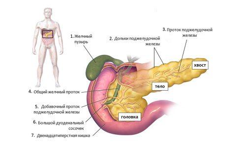 Наиболее часто в голове поджелудочной железы формируются протоковые и гигантоклеточные аденокарциномы