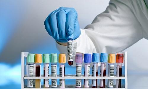 План обследования пациента перед пересадкой поджелудочной железы включает сдачу всех необходимых анализов