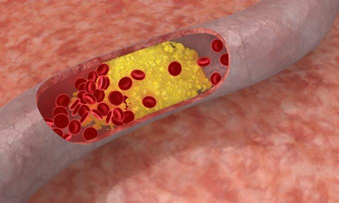 Выраженный атеросклероз крупных артерий является противопоказанием для операции по пересадке поджелудочной железы
