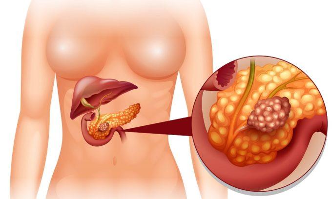 При раке поджелудочной железы необходима пересадка