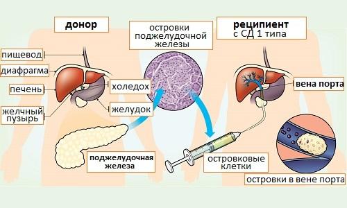 Схема проведения операции по пересадке поджелудочной железы