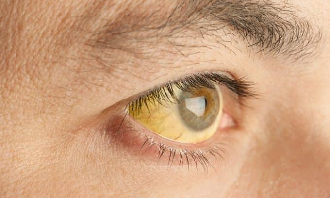 Из-за застоя желчных кислот наблюдается развитие желтухи