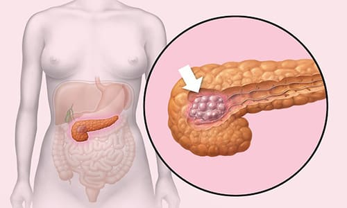 Опухоль поджелудочной железы представляет собой образование, при котором наблюдаются различные степени дифференцировки клеток эндокринной или экзокринной ткани