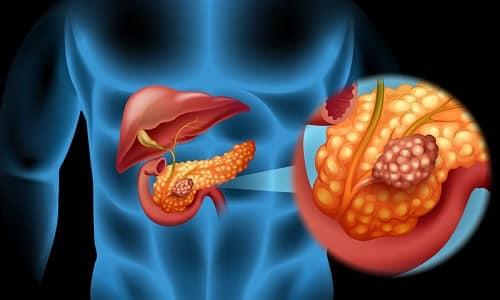 Рак головки поджелудочной - это протекающая в агрессивной форме онкологическая патология, которая имеет неблагоприятный прогноз